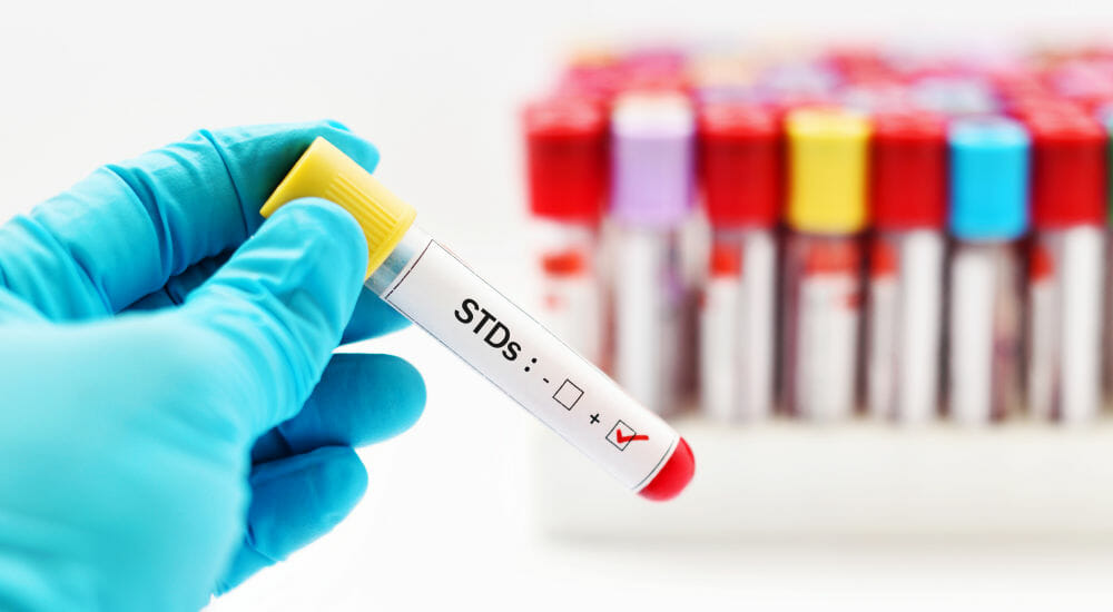 STD Testing In Grand Junction, CO
